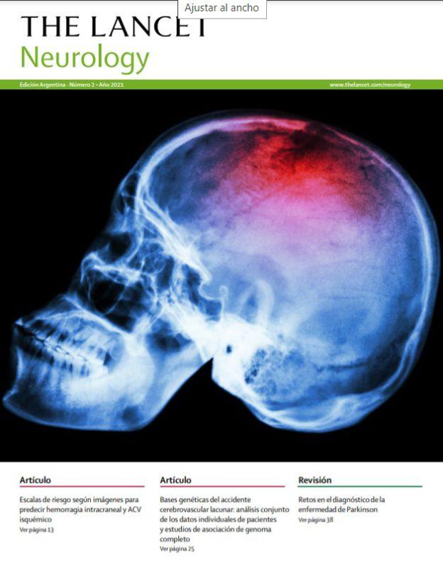 The Lancet Neurology #2/2021